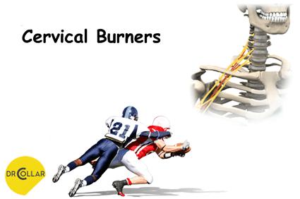 Cervical-Burners